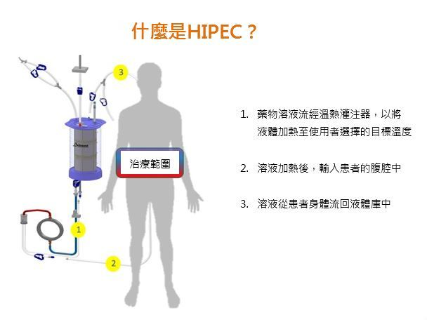What-is-HIPEC-Chinese.JPG#asset:212178